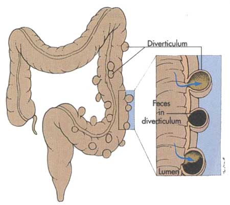 diverticulosis.jpg